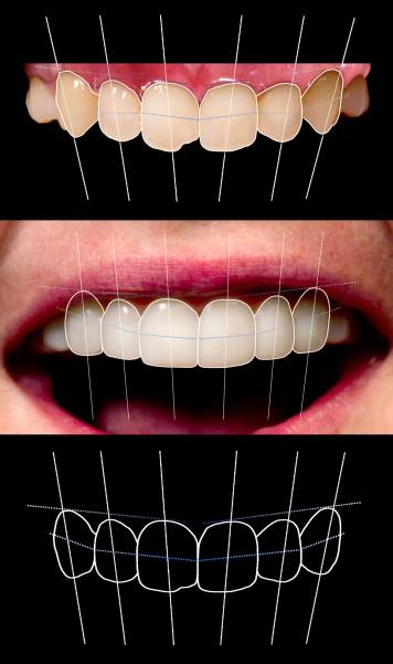 Brighter Image Lab - The Cost of Dental Work Leaves Most with No Real Choice