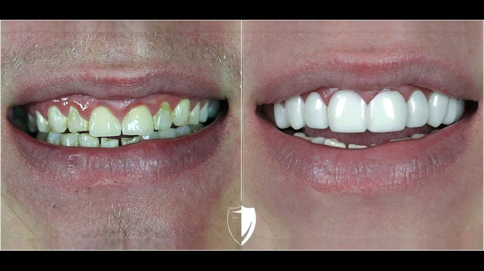BilVeneers client Justin V before and after