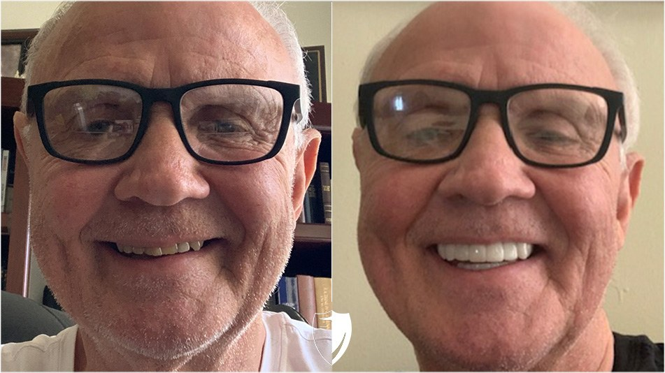 bilveneers-client-kenneth-a