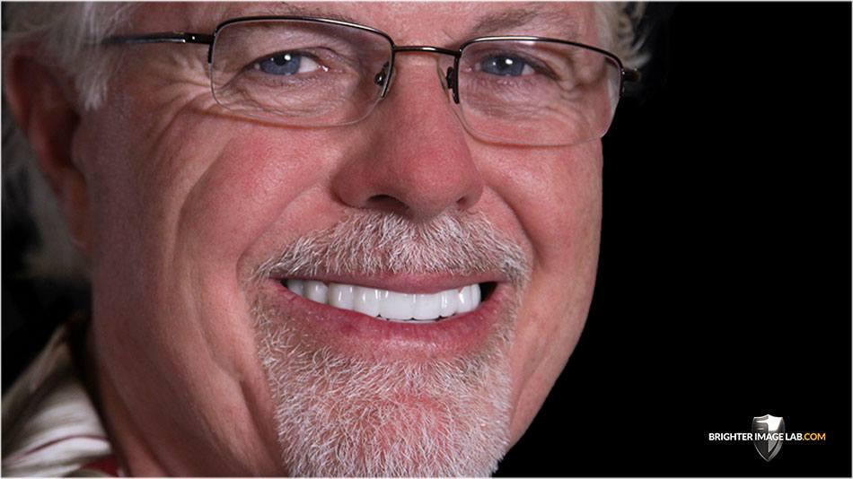Fix your smile in Honolulu, HI with Bil Veneers by Brighter Image Lab