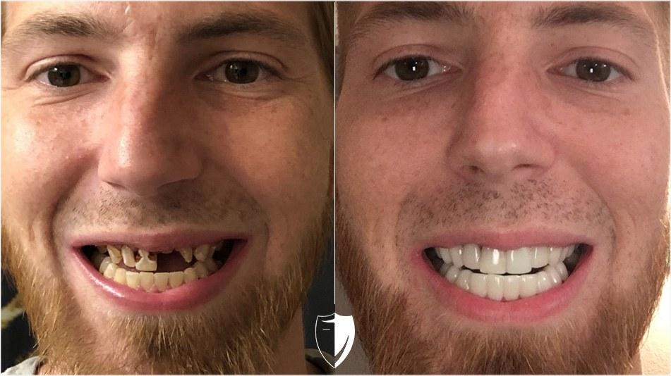 bilveneers-client-scott-k