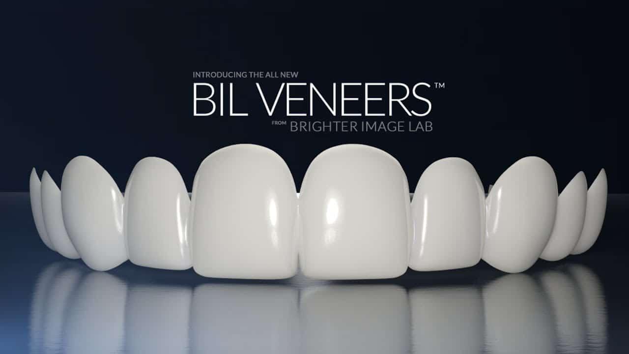 bilveneers-product-shot