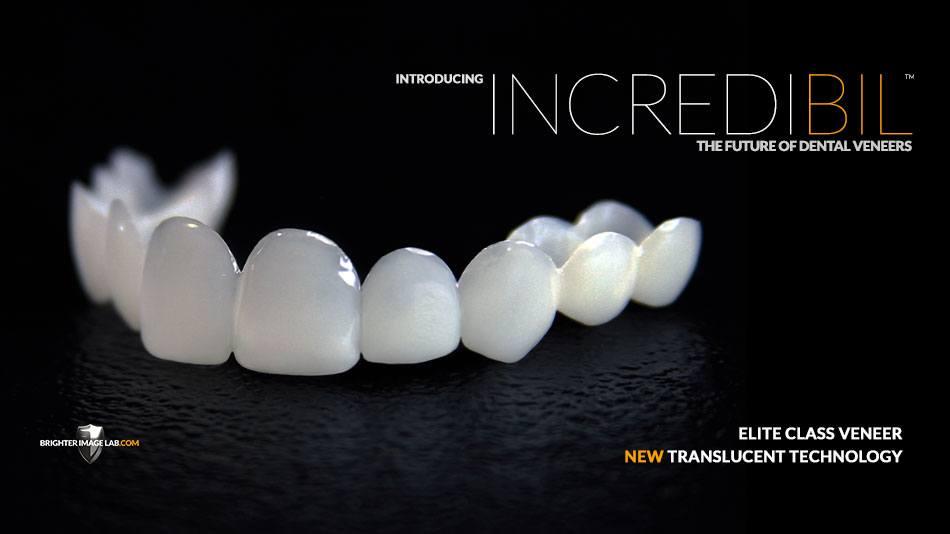 Introducing IncrediBIL - The future of dental veneers